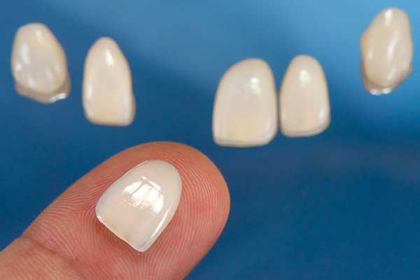 Porcelain Veneers in Forty Fort, PA