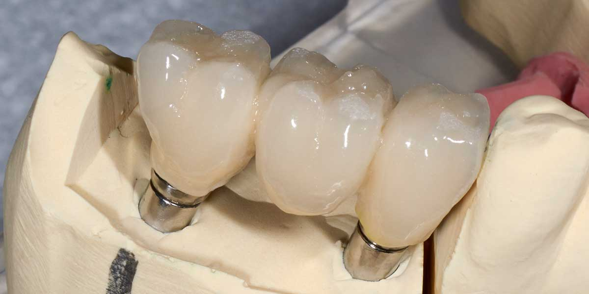 Dental Implant Supported Bridges in Forty Fort