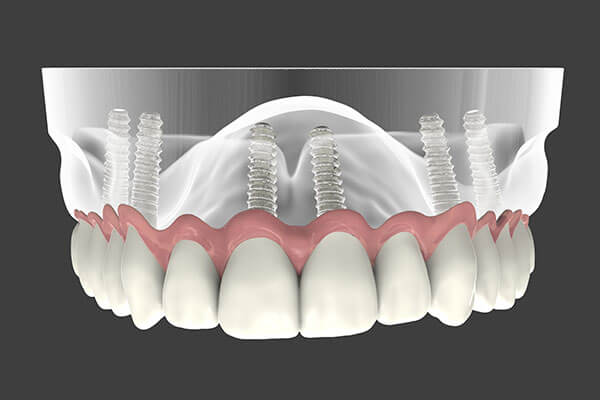 Implant Supported Denture in Forty Fort