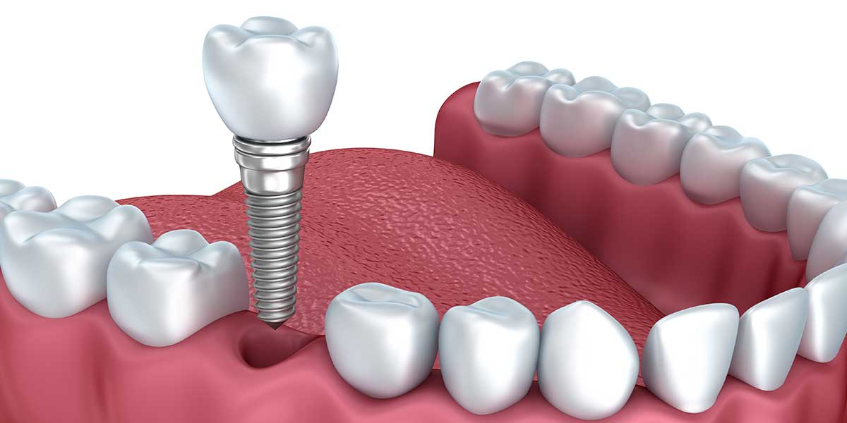 Single Dental Implants in Forty Fort