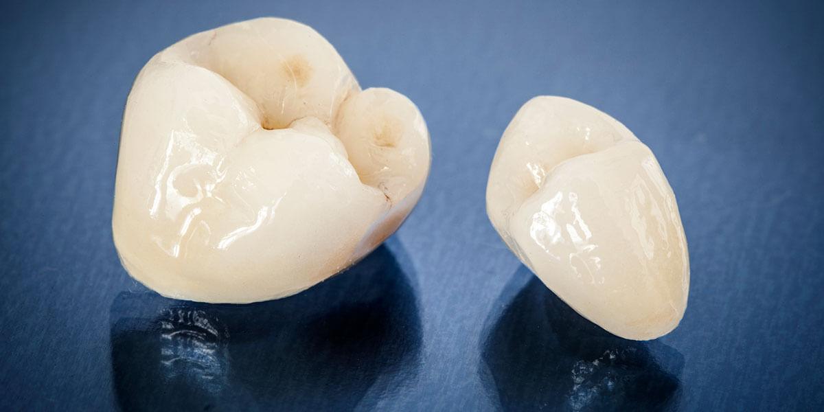 Porcelain Dental Crowns