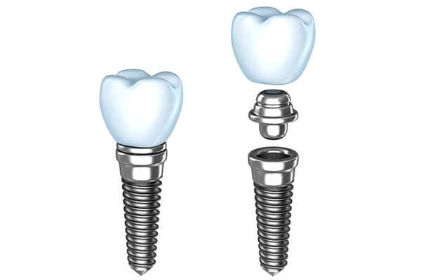 Single Dental implants in Forty Fort, PA