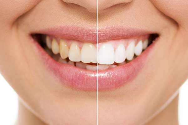 Before & After Teeth Whitening in Forty Fort